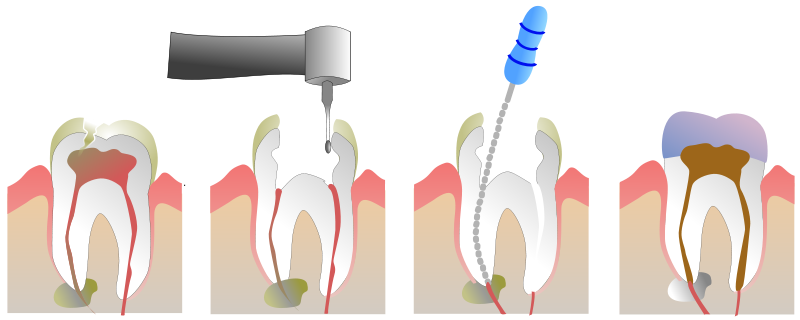 Root canals surgery India