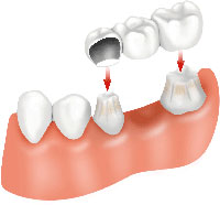 Top Dental Surgery Cost in India: IndianHealthGuru Consultants