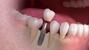 cirurgia de implantes dentários Índia