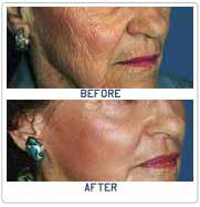 Affordable Laser Skin Resurfacing Surgery In India Best Hospital For Laser Skin Resurfacing In India